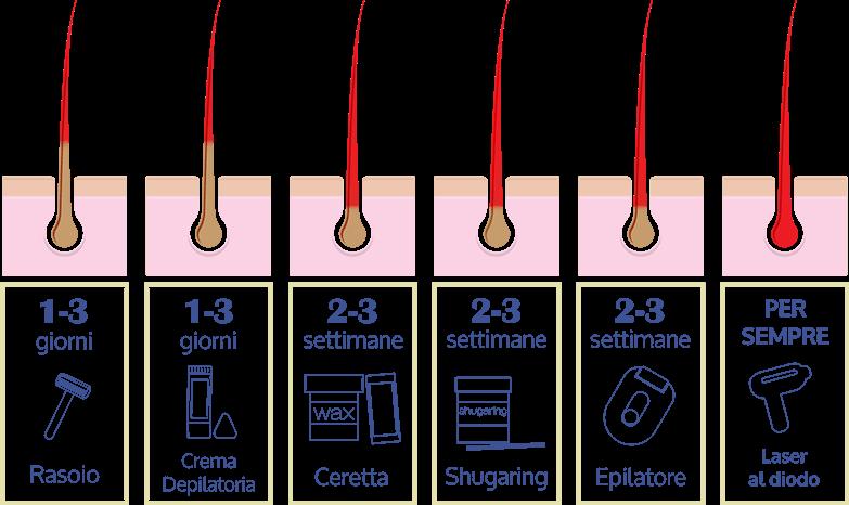differenza tra Epilazione Laser e ceretta